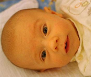 Лечение и последствия желтушки у новорожденных